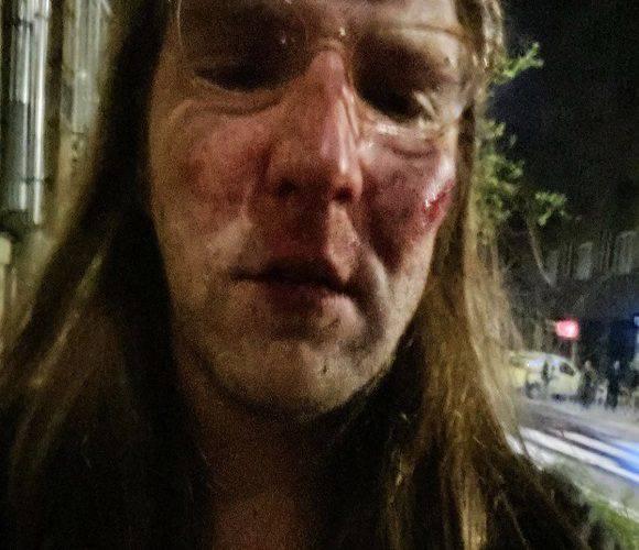 Скандал: в Польщі жорстоко побили українця, а поліція відмовилась його приймати (фото)